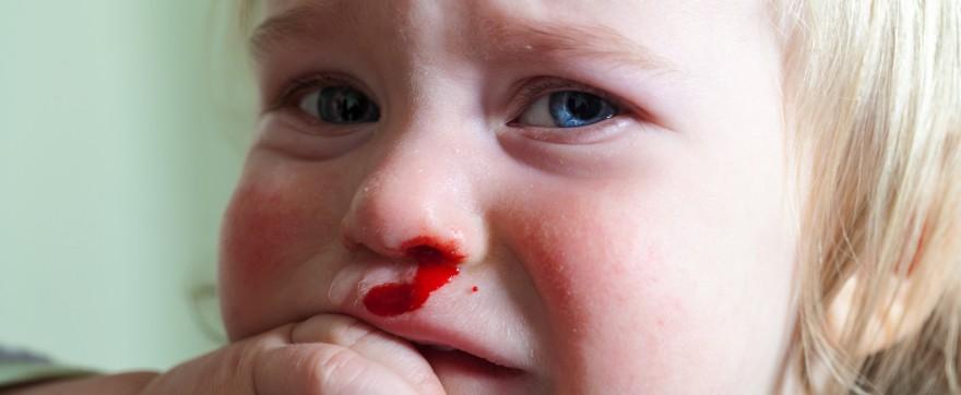 krew z nosa krwawienie z nosa u dzieci